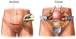 Isteroctomia